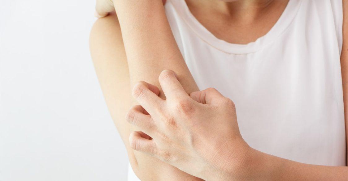 Dermatillomanie-grattage compulsif de la peau